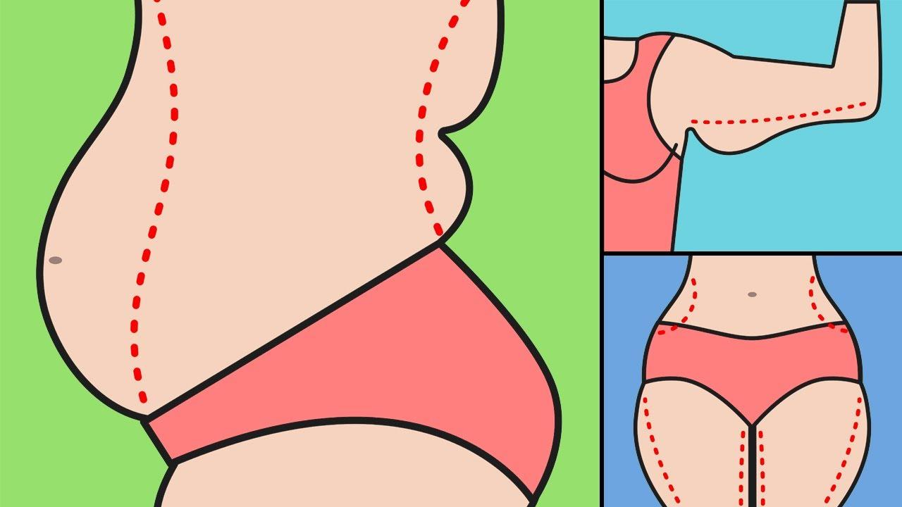 Kerugian Memiliki Berat Badan Berlebih