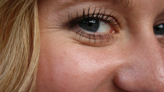 Cara Ini Efektif Menghilangkan Kerutan Di Sekitar Mata Anda