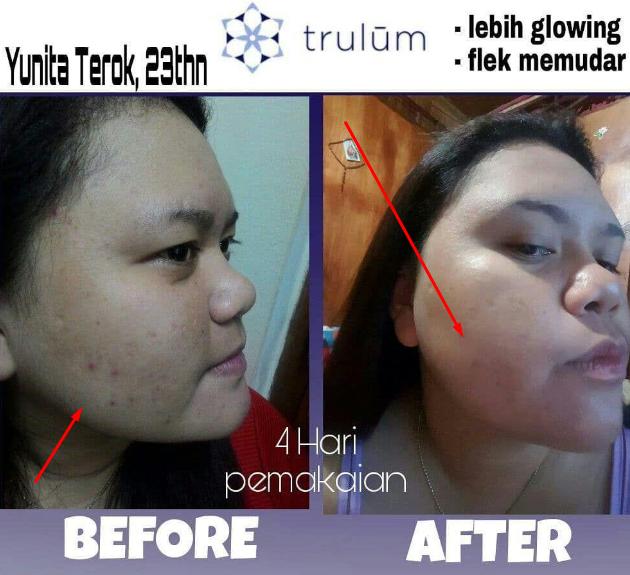 Cara Menghilangkan Bekas Jerawat Flek Hitam Secara Alami: Trulum Skincare Cara Menghilangkan Flek Hitam Secara Alami