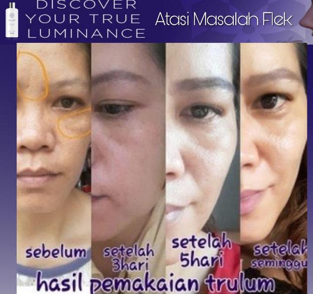 Cara Menghilangkan Bekas Jerawat Secara Alami Dalam Waktu: Trulum Skincare Cara Menghilangkan Flek Hitam Secara Alami