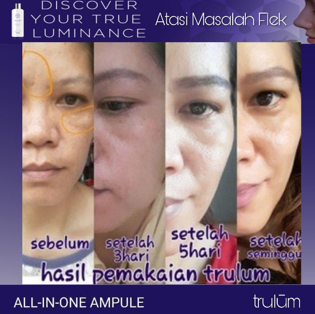 Cara Alami Menghilangkan Bekas Jerawat Dan Flek Hitam: Trulum Skincare Cara Menghilangkan Flek Hitam Di Wajah