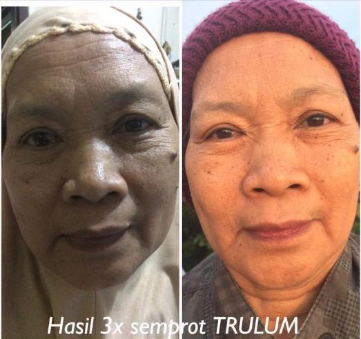 Trulum Solusi Hebat Untuk Masalah Kulit: Trulum Skincare Untuk Keriput Dibawah Mata