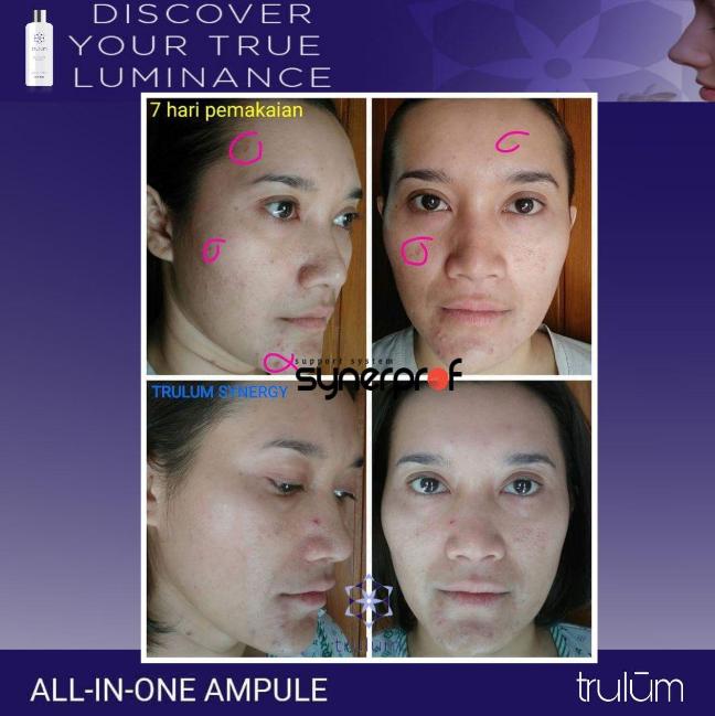 2 Cara Menghilangkan Flek Hitam Di Wajah Ada Testimoni: Trulum Skincare Cream Penghilang Flek Hitam Membandel Di