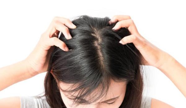 alasan kulit kepala mengelupas seperti ketombe