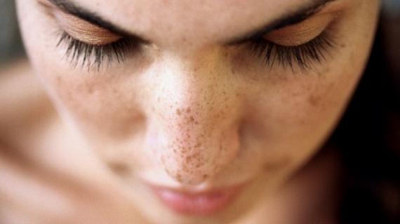 Cara Membersihkan Flek Hitam Di Wajah Dengan Benar
