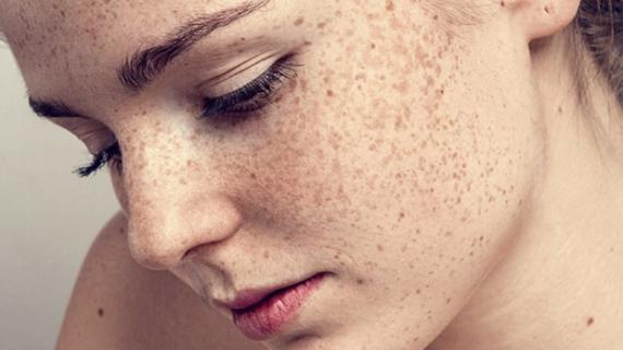 Bagaimana Cara Menghilangkan Bintik Hitam di Muka