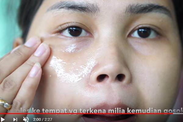 cara menghilangkan bintik putih di wajah seperti jerawat