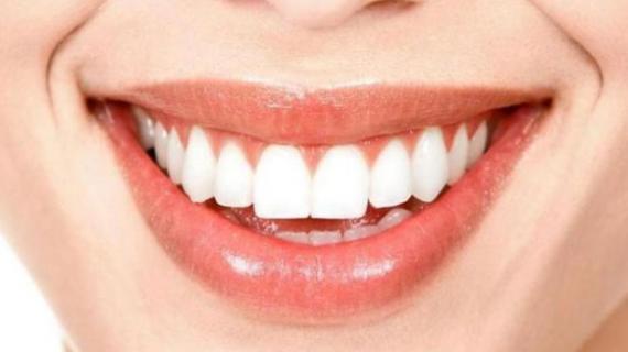 Cara Merawat Gigi Supaya Putih