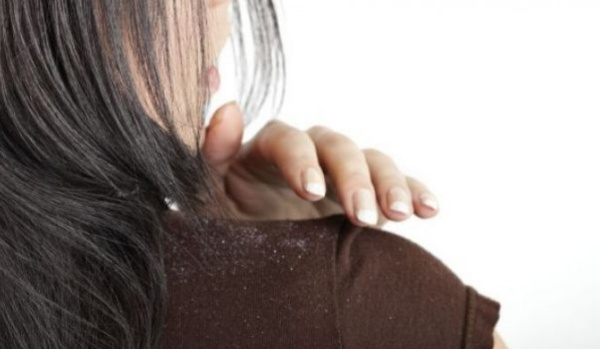 kulit kepala gatal rambut rontok