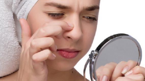 Manfaat Pasta Gigi Untuk Komedo