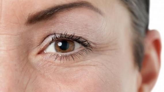 Tips Menghilangkan Kerutan di Bawah Mata yang Paling Ampuh