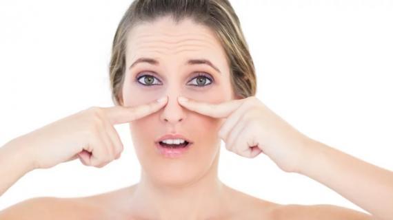 Penyebab Komedo Putih di Hidung