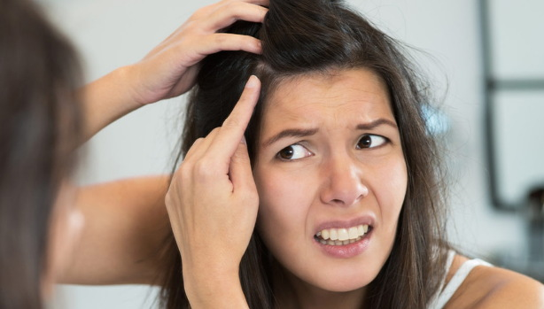penyebab kulit kepala berkerak seperti ketombe