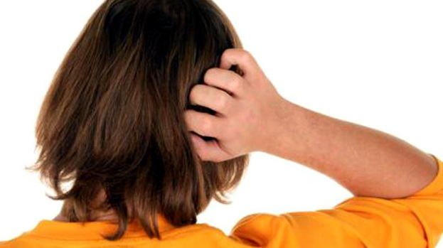 penyebab kulit kepala mengelupas seperti ketombe