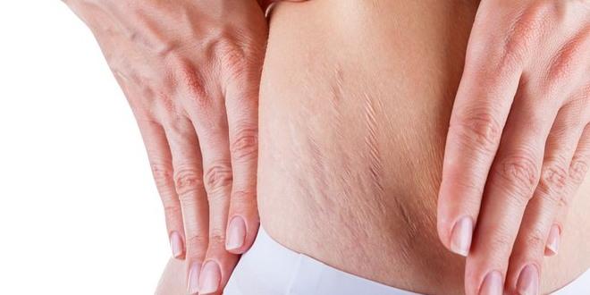 penyebab stretch mark pada ibu hamil