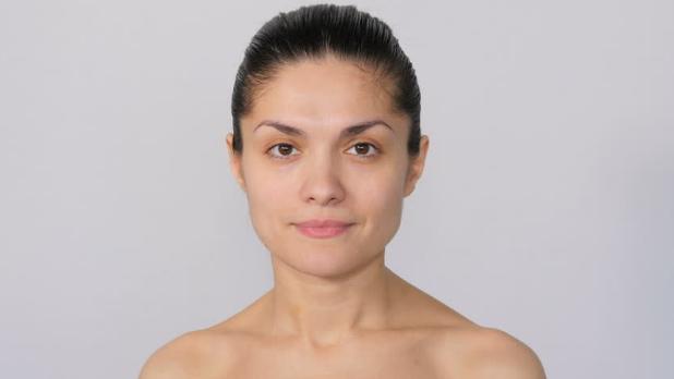 perawatan muka berjerawat
