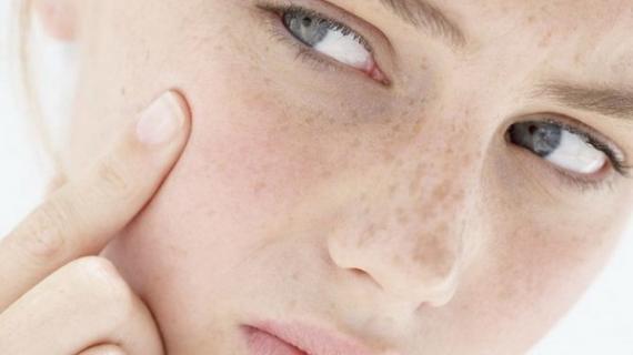 Rekomendasi Sabun Wajah yang Cocok Untuk Kulit Kering