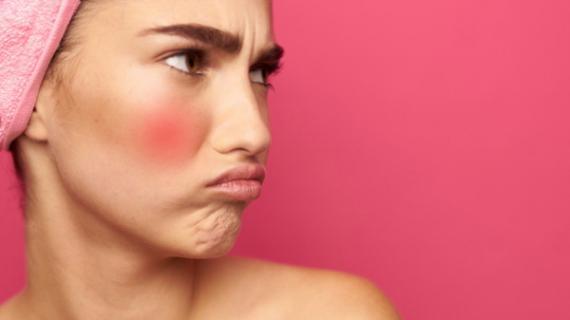 Rekomendasi Sabun Wajah yang Cocok Untuk Kulit Sensitif