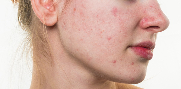 tanda tanda wajah tidak cocok dengan sabun muka